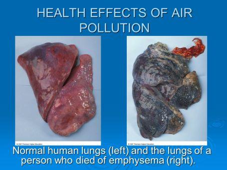 emphysema akciğer