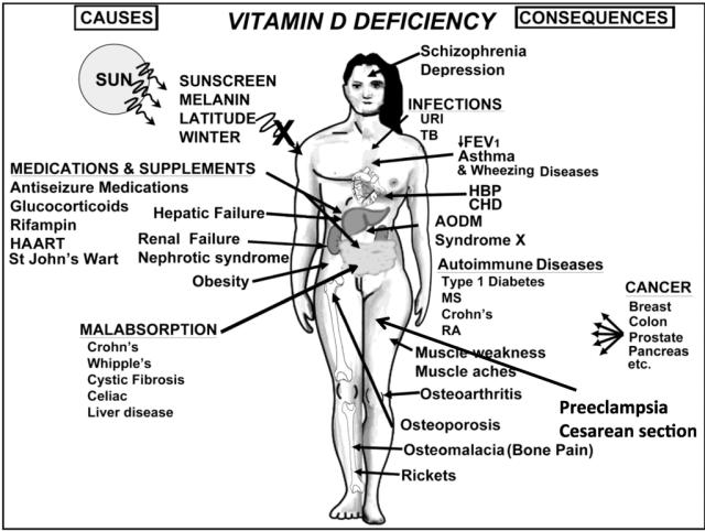 vitamin d hastalıklar hakankonyar