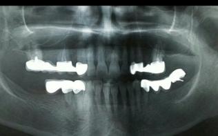 Diş doktoru Derya KONYAR 11