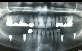 Diş doktoru Derya KONYAR 12