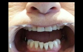 Diş doktoru Derya KONYAR 13