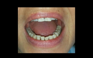 Diş doktoru Derya KONYAR 14
